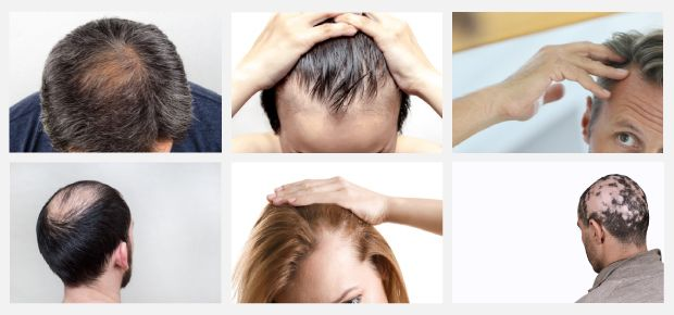 Beispiele Formen Haarausfall