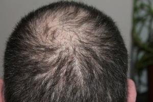 Die ersten Anzeichen für Haarausfall