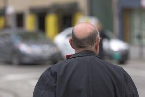 Formen von Haarausfall