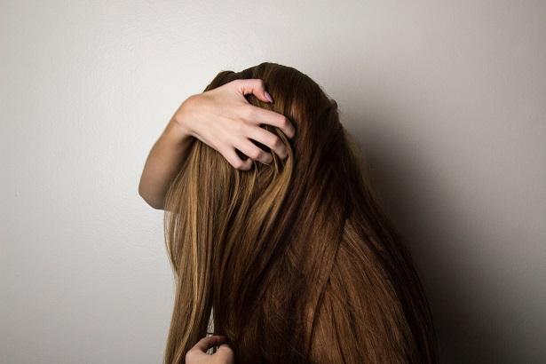 anlagebedingter Haarausfall bei Frauen