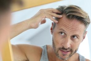 Haartransplantation Kosten, Methoden, Risiken