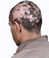 Kreisrunder Haarausfall (Alopecia areata)
