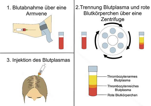 Ablauf einer PRP Eigenbluttherapie