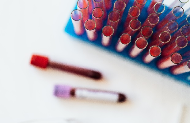 PRP Eigenbluttherapie Reagenzglas zur Blutentnahme
